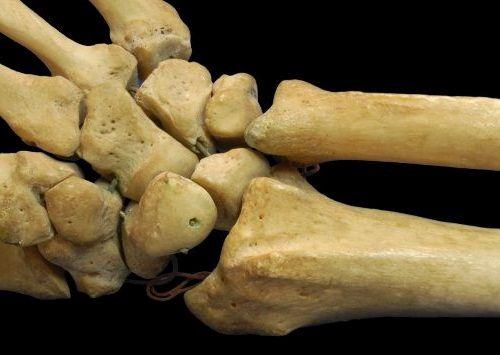 Gambar Tulang